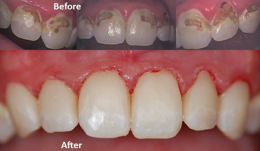 Mercury Free Dentist Gave Me White Fillings That Hurt Hamburg Expressions