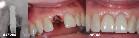 Implant with tissue abutment
