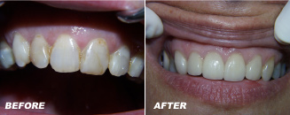Before:After Veneers